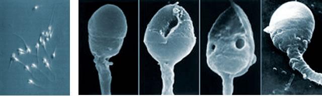 Differenza tra spermatozoi osservati con ingrandimento 400x e spermatozoi ad alto ingrandimento (IMSI).